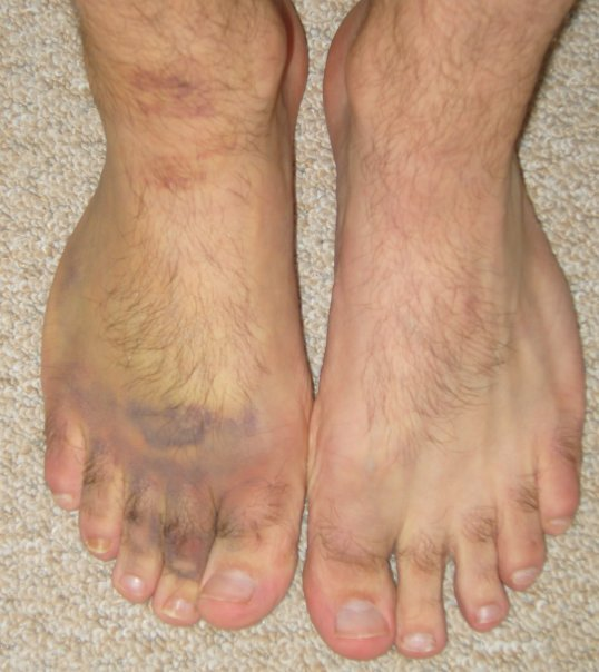 how to tell if your foot is broken or fractured